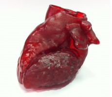 3D-Printed Heart Saves The Life